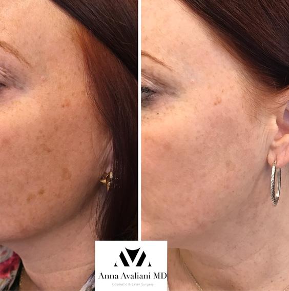 Novathreads Anna Avaliani Md Cosmetic Amp Laser Surgery