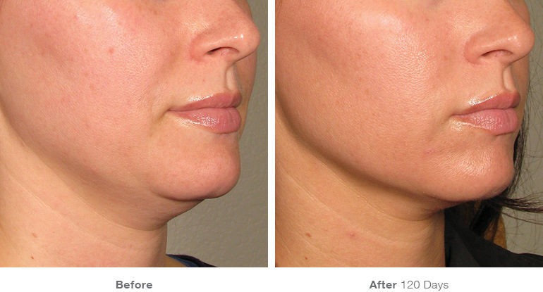 before_after_results_under-chin18