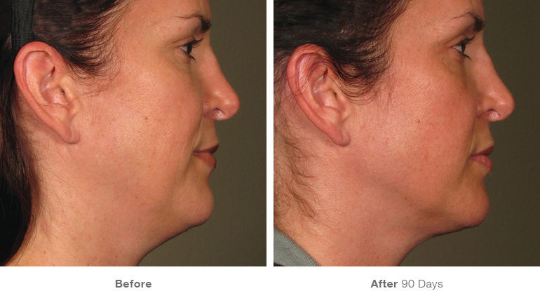 before_after_ultherapy_results_full-face6