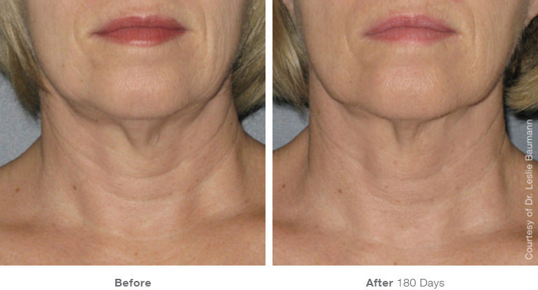 Facial skin tightening in cosmetic surgery