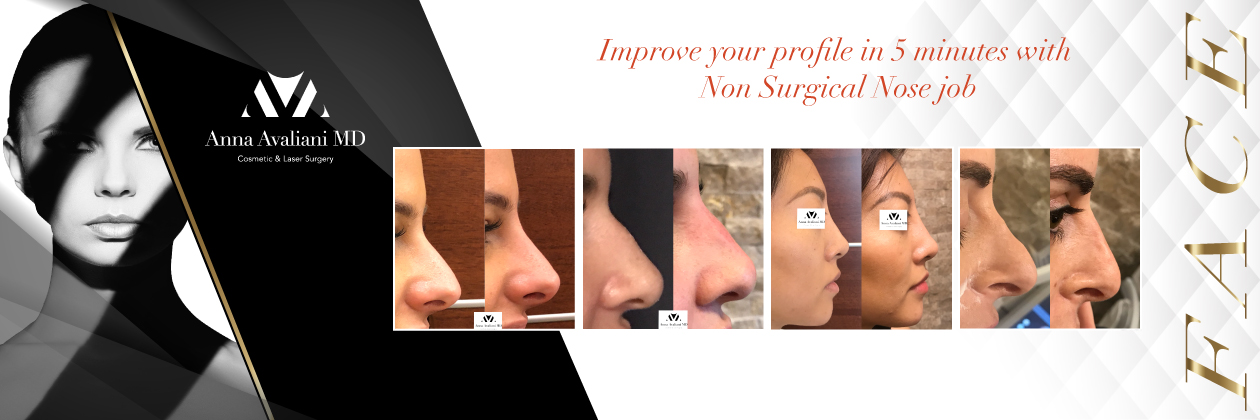nose_job_banner