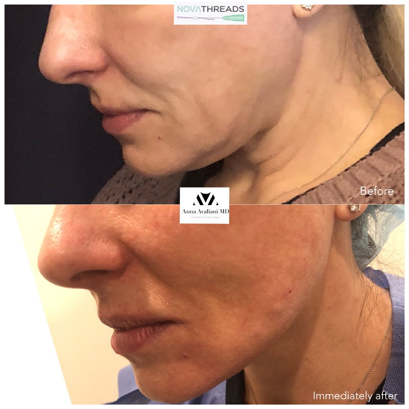 Gallery Face Threads Anna Avaliani Md Cosmetic