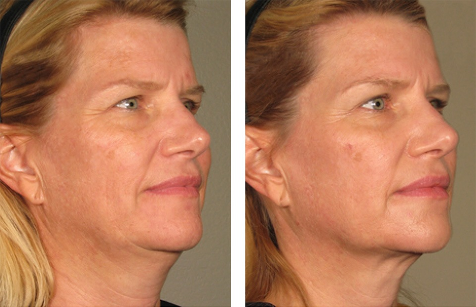 1000879mkt_revf_patient-before-and-after-photos-maste-4