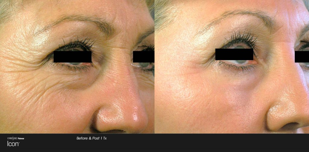 Laser Skin resurfacing - Anna Avaliani MD - Cosmetic & Laser