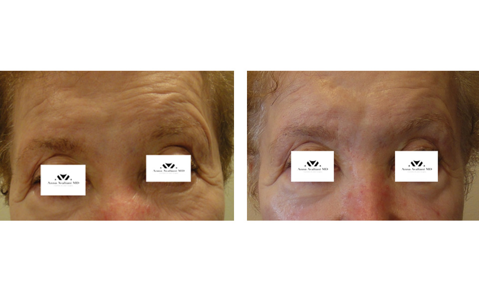 1000879mkt_revf_patient-before-and-after-photos-maste-15