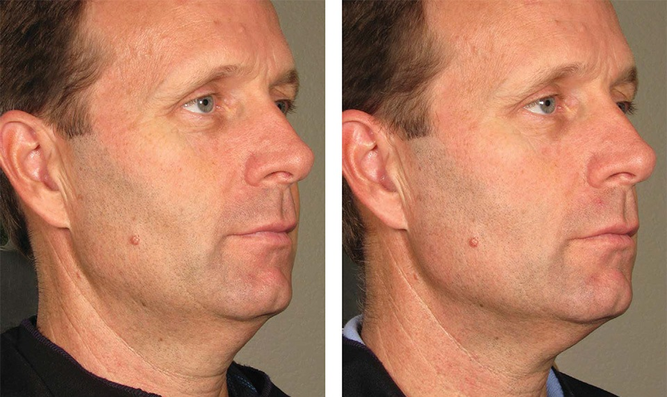 1000879mkt_revf_patient-before-and-after-photos-maste-11