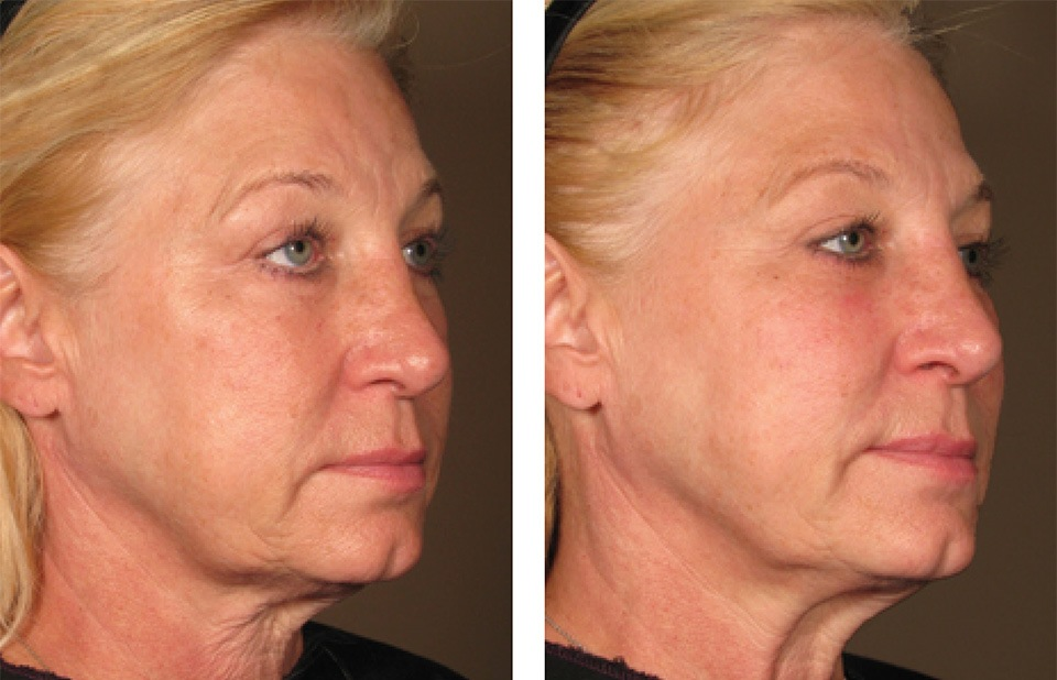 1000879mkt_revf_patient-before-and-after-photos-maste-5