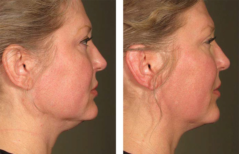 1000879mkt_revf_patient-before-and-after-photos-maste-7