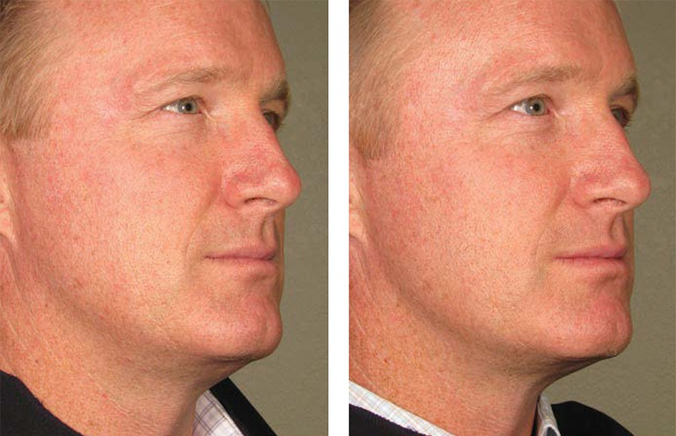 1000879mkt_revf_patient-before-and-after-photos-maste-8