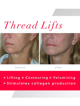 Non Surgical Lunch Time Thread Face Lift - Anna Avaliani MD