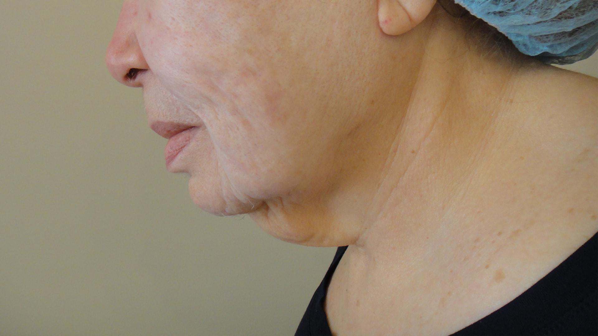 NovaThreads - Anna Avaliani MD - Cosmetic & Laser Surgery