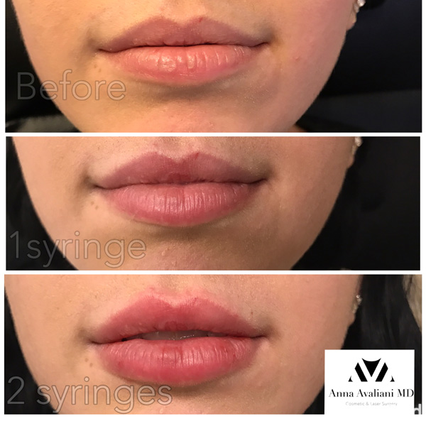 Lip Augmentation/ Volbella