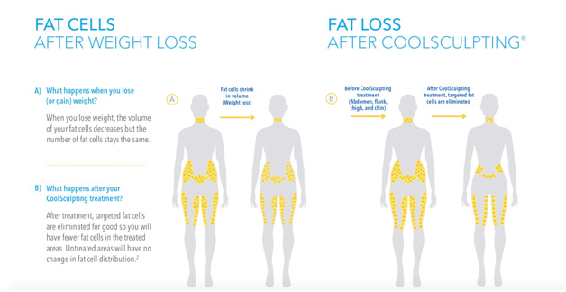 Coolsculpting Anna Avaliani Md Cosmetic Amp Laser