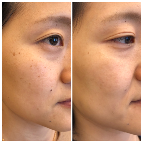 Newest and Best Lasers for Asian Skin: How to treat