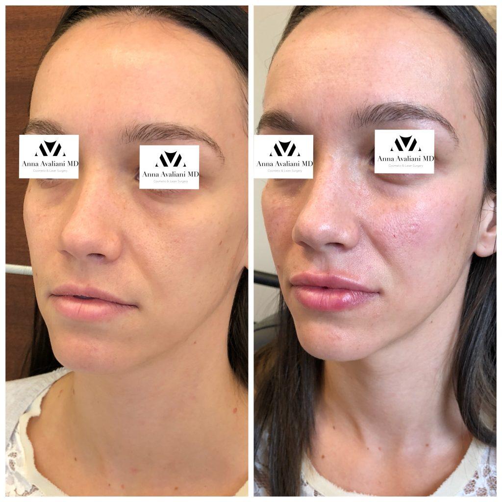 IMG_1657 - Anna Avaliani MD - Cosmetic & Laser Surgery ...